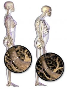 Blausen_0686_Osteoporosis_01